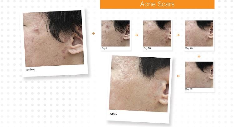 Acne Scar Removal Melbourne