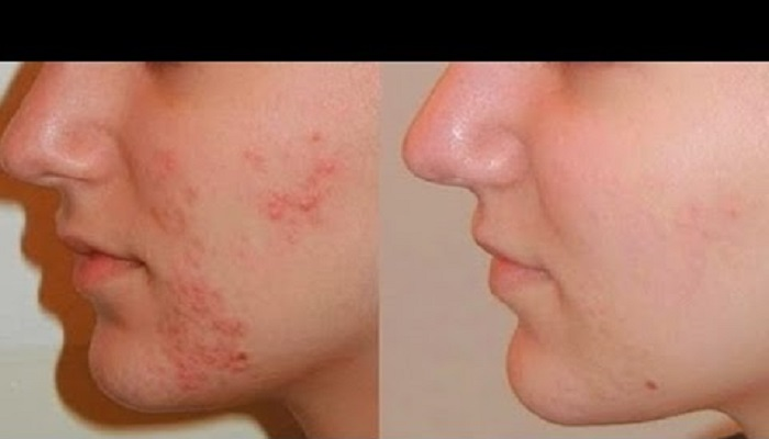 Acne Treatment Melbourne