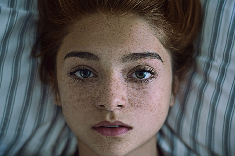 Hyperpigmentation Treatment Melbourne